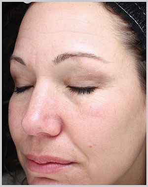Hyperpigmentation Before Photo